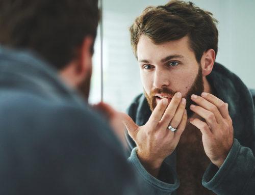 4 astuces naturelles contre l'acné
