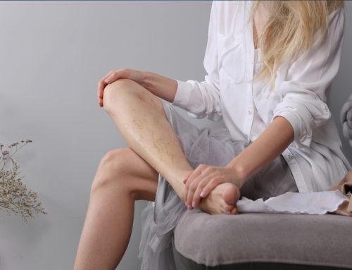 6 astuces naturelles pour soulager les jambes lourdes