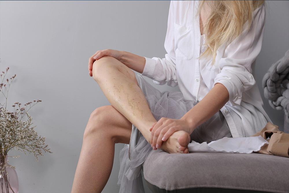 Femme assise souffrant de jambes lourdes